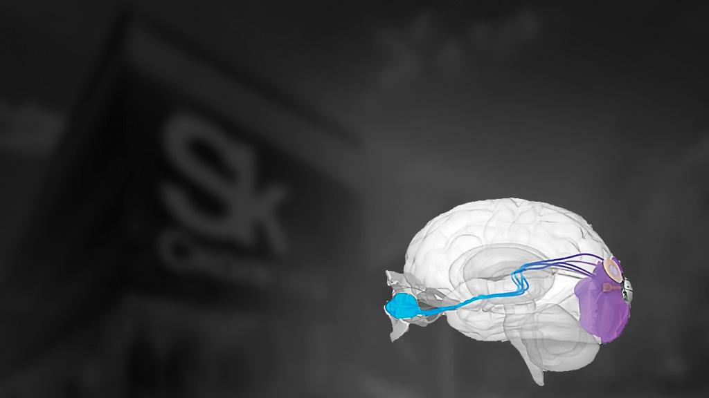 Новый нейроимплант от «Сколково» возвращает зрение